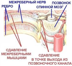 sdavlivanie-nerva